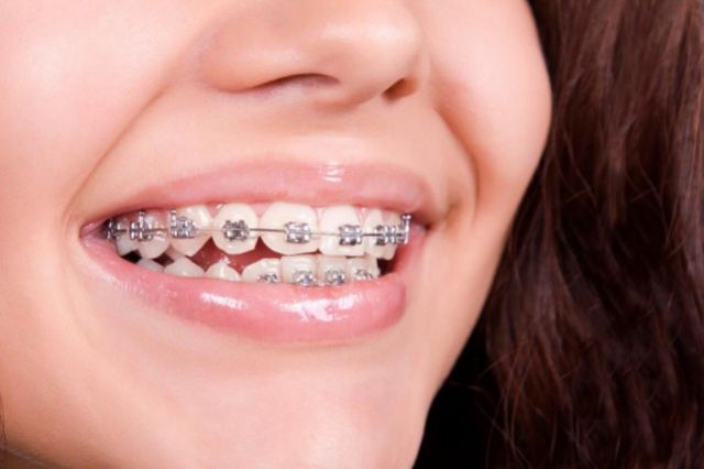 Expansion palatine orthodontique chez l'adulte