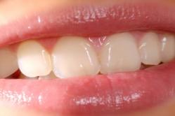 5 choses à considérer AVANT de débuter un traitement d'orthodontie
